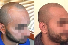 Scalp Coverage & New Hairline - First session